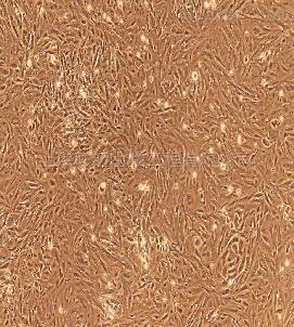 人前列腺上皮细胞