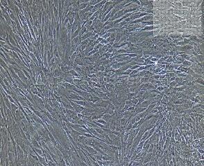 人食管成纤维细胞