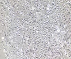 人结肠粘膜上皮细胞