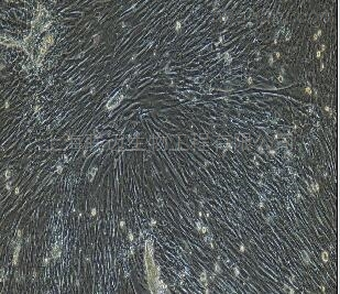 小鼠腹腔主动脉平滑肌细胞