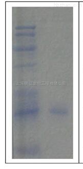 蛋白胶微量回收试剂盒